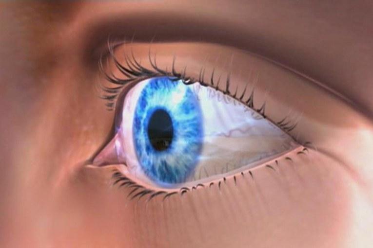 """لأول مرة..""""عين صناعية"""" تعيد البصر للمكفوفين و تحسن القدرة على الرؤية"""