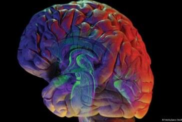 إصابة الإنسان بالجفاف تغير شكل ونشاط الدماغ